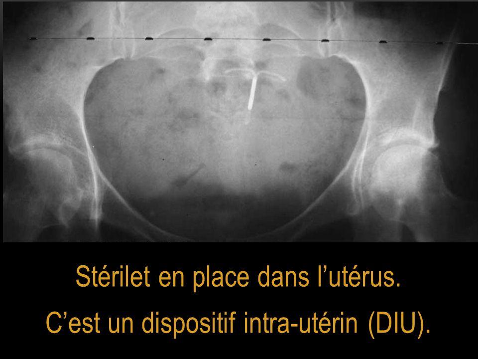Stérilet en place dans lutérus. Cest un dispositif intra-utérin (DIU).