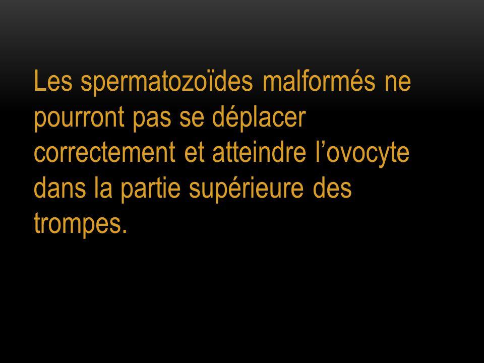 Les spermatozoïdes malformés ne pourront pas se déplacer correctement et atteindre lovocyte dans la partie supérieure des trompes.