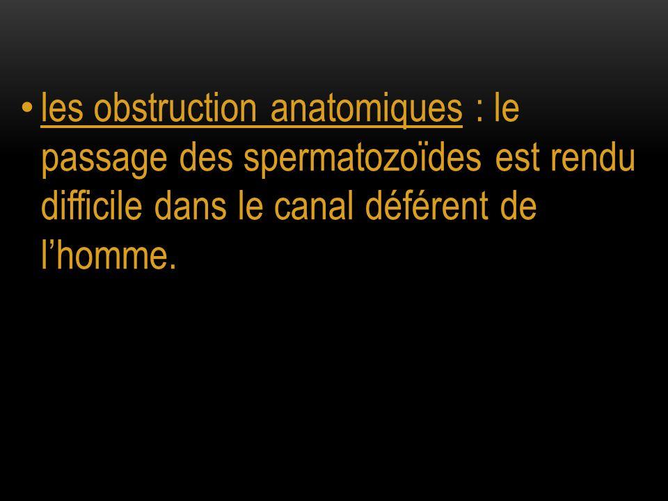 les obstruction anatomiques : le passage des spermatozoïdes est rendu difficile dans le canal déférent de lhomme.