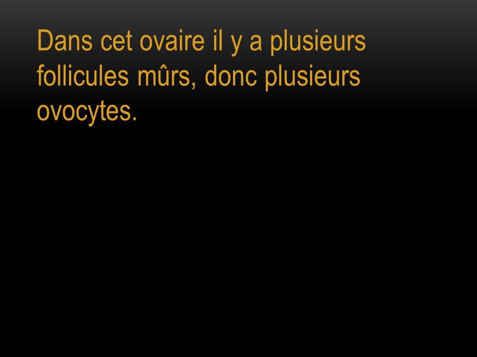 Dans cet ovaire il y a plusieurs follicules mûrs, donc plusieurs ovocytes.