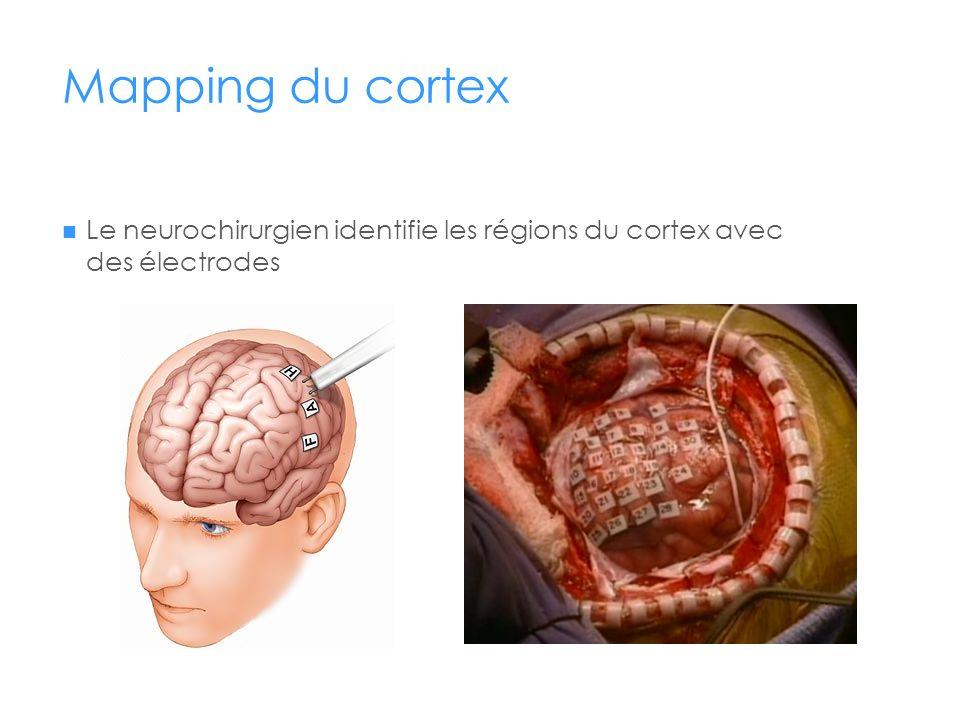 Mapping du cortex Le neurochirurgien identifie les régions du cortex avec des électrodes