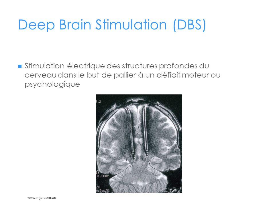 Deep Brain Stimulation (DBS) Stimulation électrique des structures profondes du cerveau dans le but de pallier à un déficit moteur ou psychologique ww