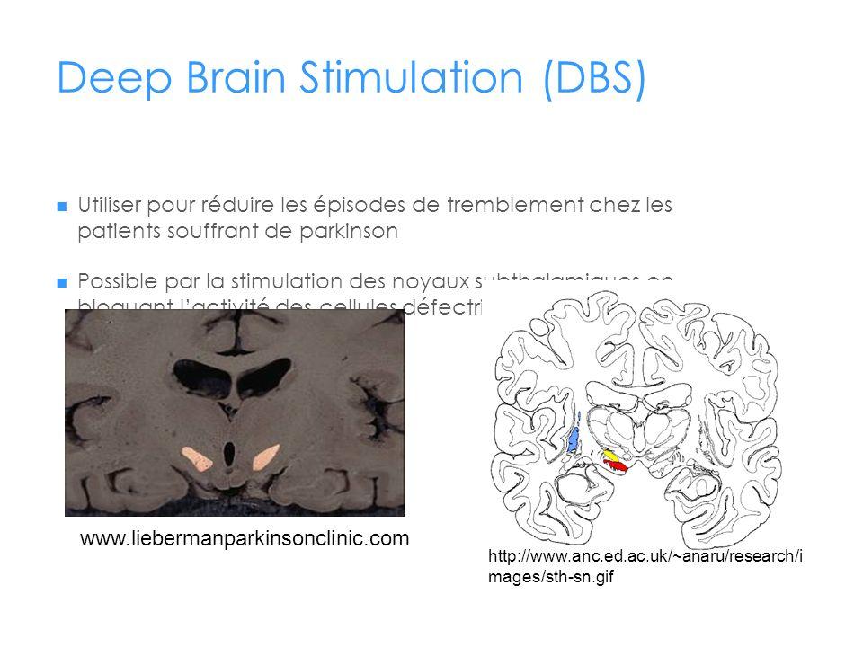 Deep Brain Stimulation (DBS) Utiliser pour réduire les épisodes de tremblement chez les patients souffrant de parkinson Possible par la stimulation de
