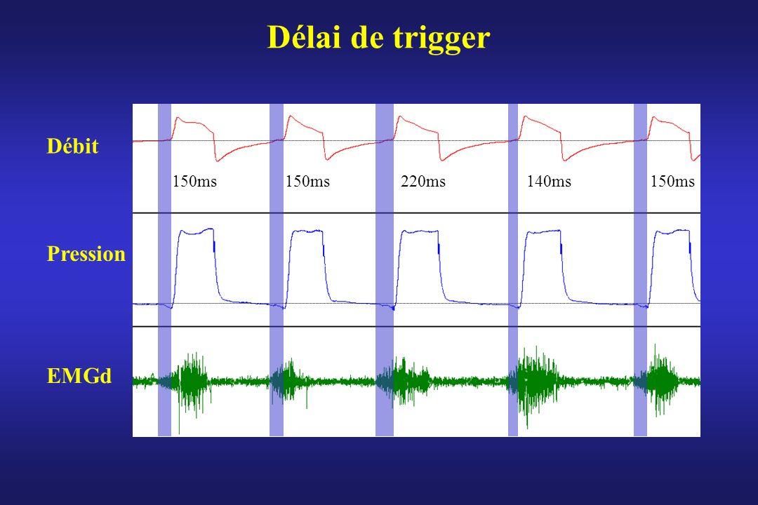 Délai de trigger Débit Pression EMGd 150ms 220ms 140ms 150ms