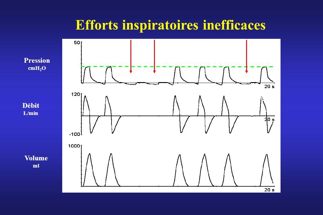 Efforts inspiratoires inefficaces Débit L/min Pression cmH 2 O Volume ml ! ! !