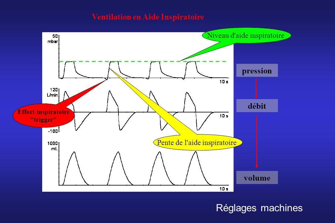pression débit volume Ventilation en Aide Inspiratoire Effort inspiratoire