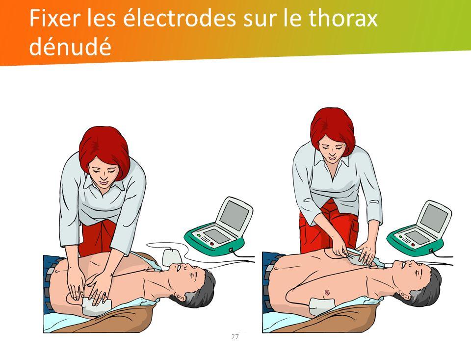 Fixer les électrodes sur le thorax dénudé 27