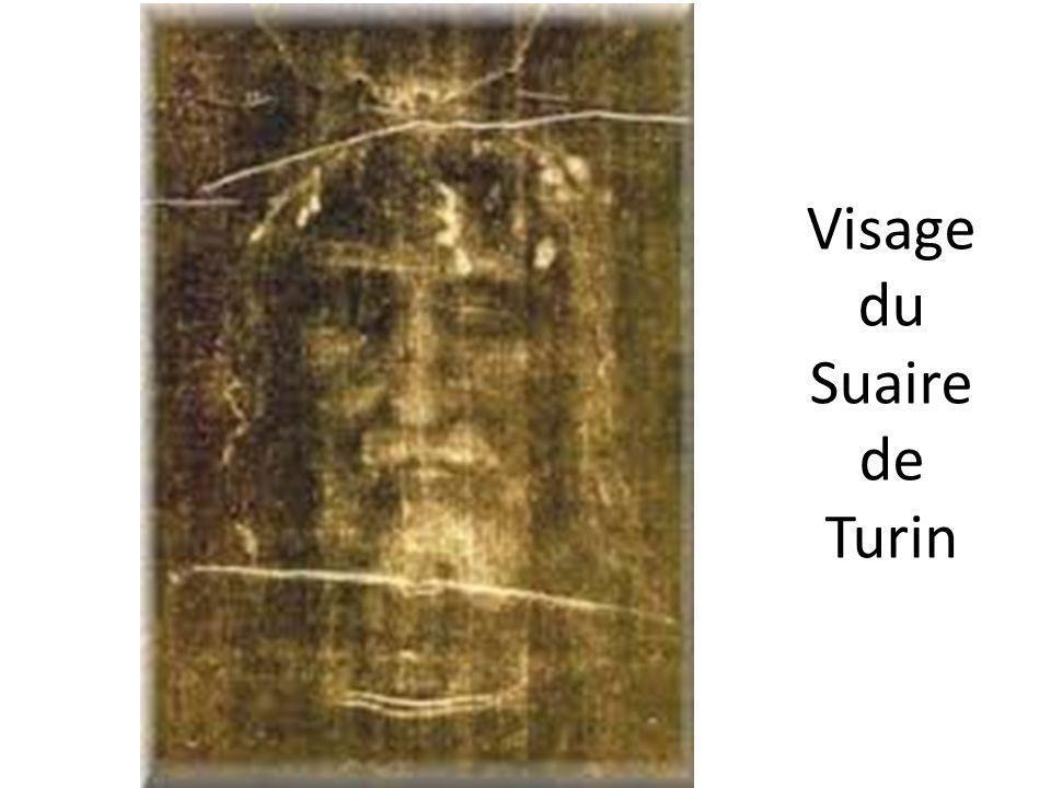 Visage du Suaire de Turin