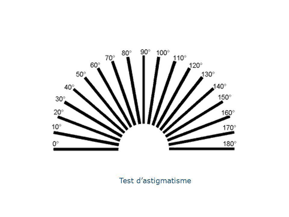 Test dastigmatisme