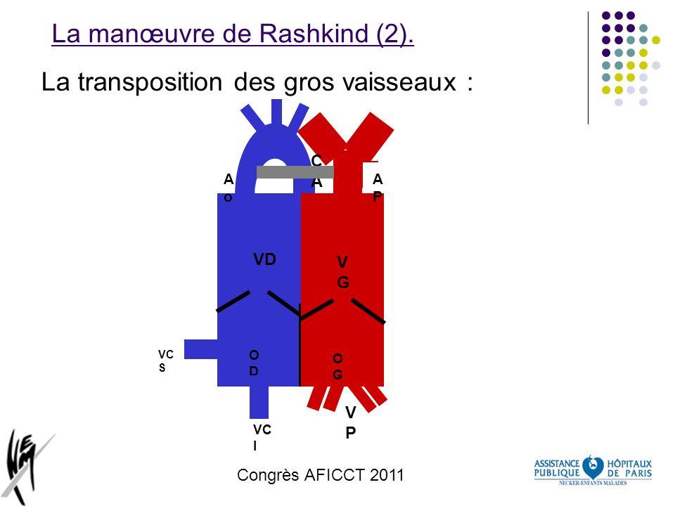 Congrès AFICCT 2011 La manœuvre de Rashkind (2). La transposition des gros vaisseaux : ODOD VD OGOG VGVG VPVP CACA AoAo VC I VC S APAP OGOG VGVG