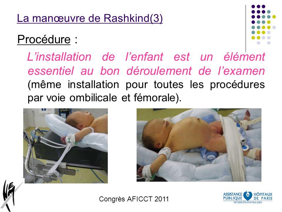 Congrès AFICCT 2011 La manœuvre de Rashkind(3) Procédure : Linstallation de lenfant est un élément essentiel au bon déroulement de lexamen (même insta