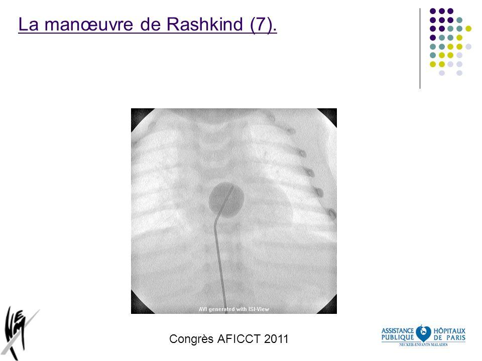 Congrès AFICCT 2011 La manœuvre de Rashkind (7).