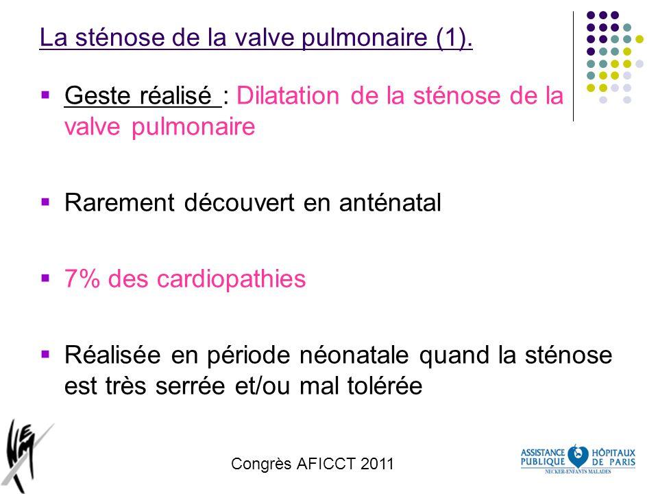 Congrès AFICCT 2011 La sténose de la valve pulmonaire (1). Geste réalisé : Dilatation de la sténose de la valve pulmonaire Rarement découvert en antén