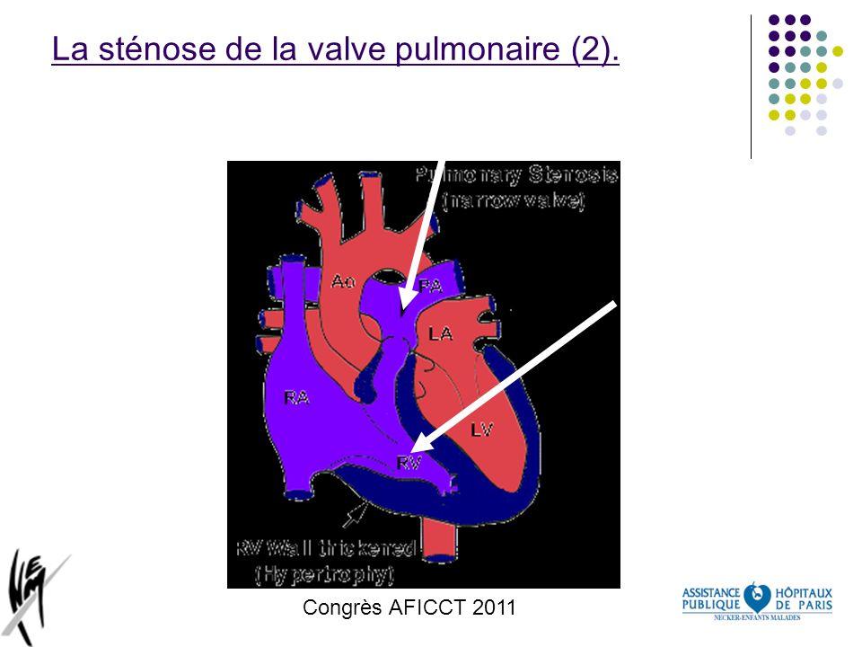 Congrès AFICCT 2011 La sténose de la valve pulmonaire (2).