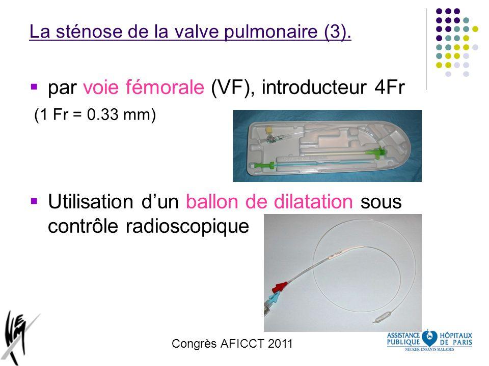 Congrès AFICCT 2011 La sténose de la valve pulmonaire (3). par voie fémorale (VF), introducteur 4Fr (1 Fr = 0.33 mm) Utilisation dun ballon de dilatat
