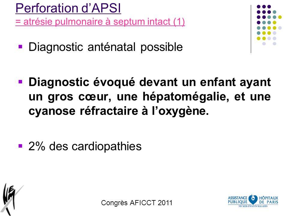 Congrès AFICCT 2011 Perforation dAPSI = atrésie pulmonaire à septum intact (1) Diagnostic anténatal possible Diagnostic évoqué devant un enfant ayant