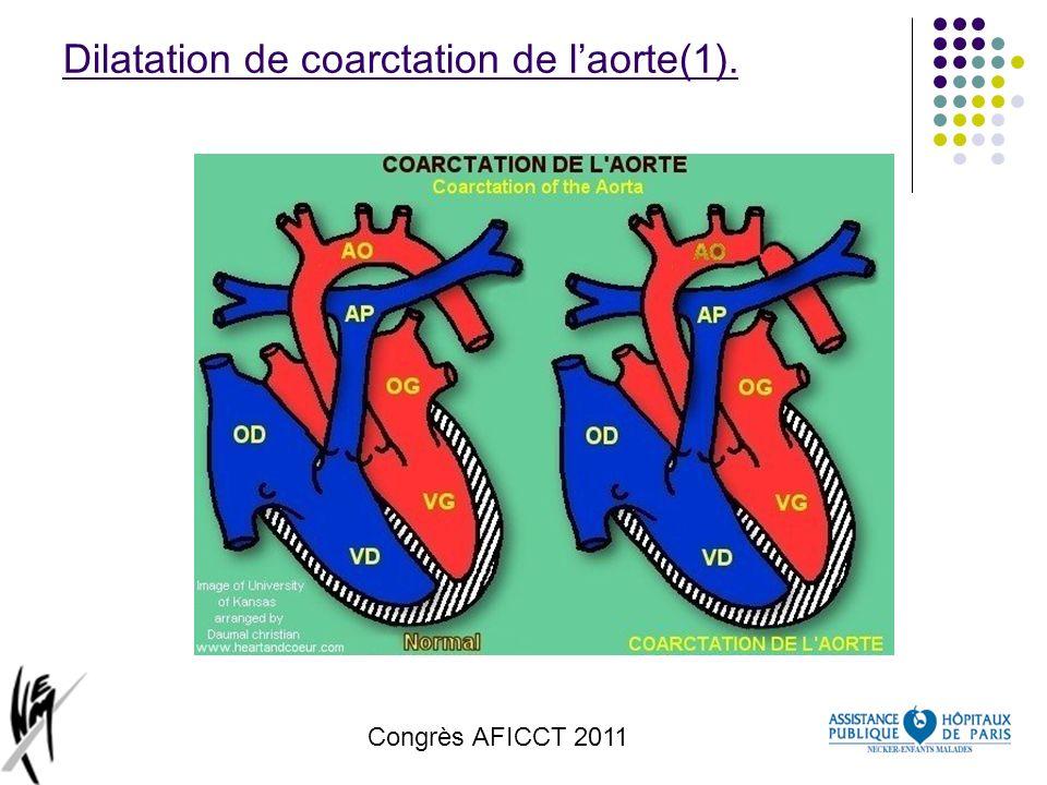 Congrès AFICCT 2011 Dilatation de coarctation de laorte(1).
