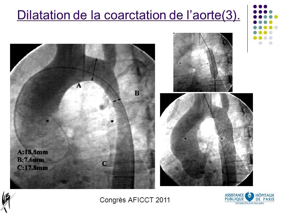 Congrès AFICCT 2011 Dilatation de la coarctation de laorte(3).