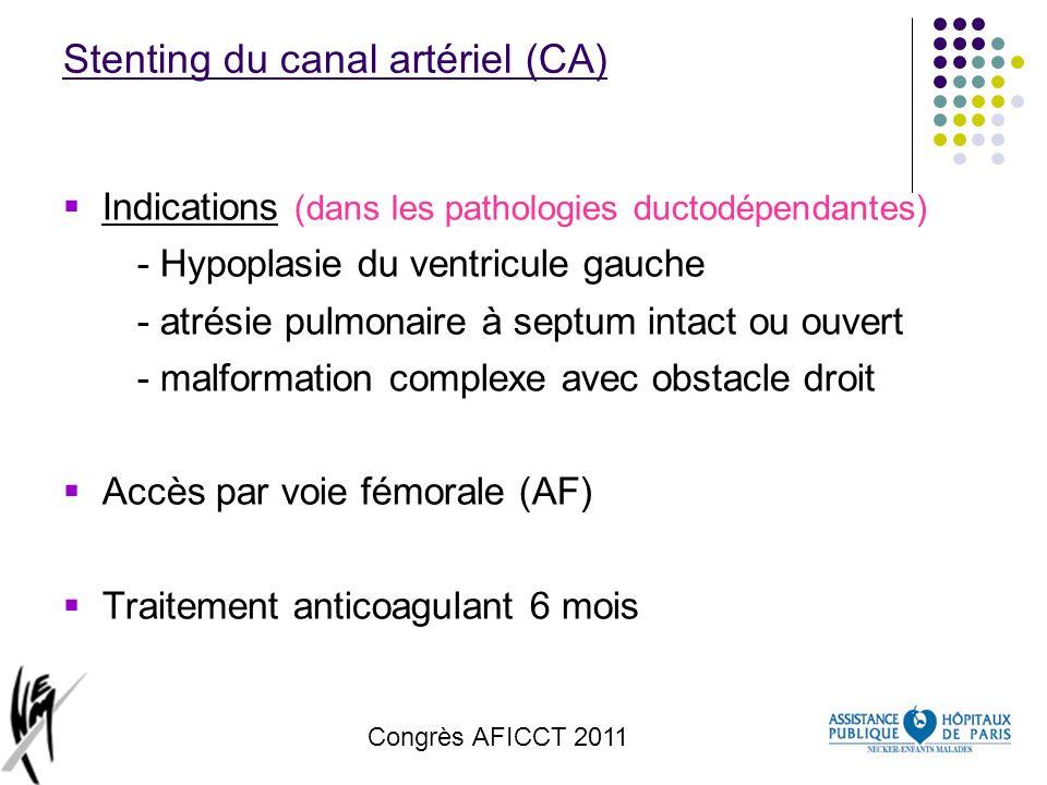 Congrès AFICCT 2011 Stenting du canal artériel (CA) Indications (dans les pathologies ductodépendantes) - Hypoplasie du ventricule gauche - atrésie pu