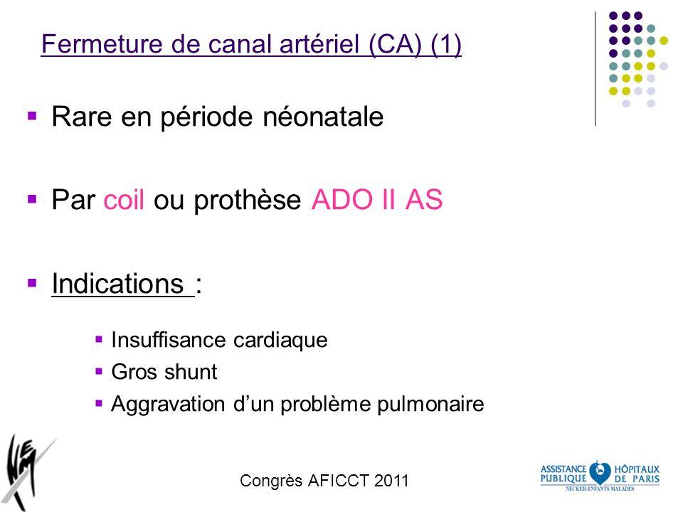 Congrès AFICCT 2011 Fermeture de canal artériel (CA) (1) Rare en période néonatale Par coil ou prothèse ADO II AS Indications : Insuffisance cardiaque