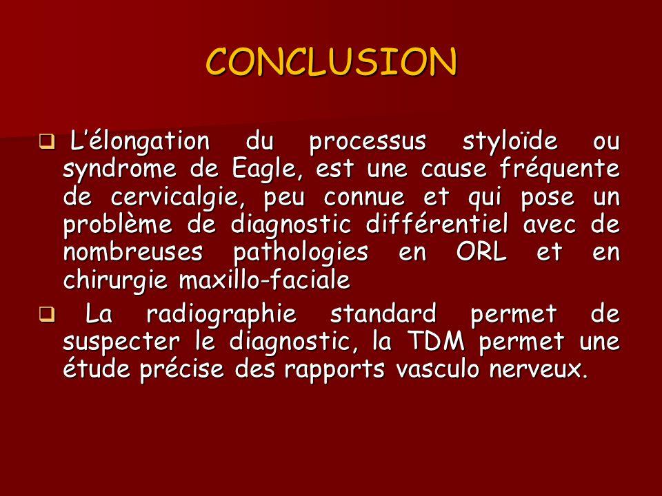 CONCLUSION Lélongation du processus styloïde ou syndrome de Eagle, est une cause fréquente de cervicalgie, peu connue et qui pose un problème de diagn