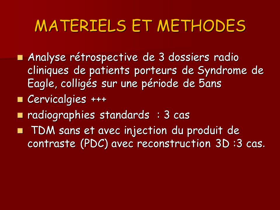 MATERIELS ET METHODES Analyse rétrospective de 3 dossiers radio cliniques de patients porteurs de Syndrome de Eagle, colligés sur une période de 5ans