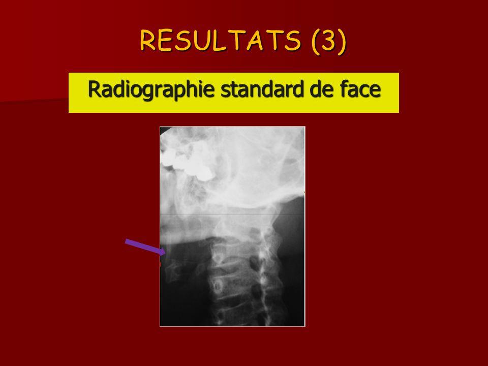 RESULTATS (4) SCANNER CERVICAL : processus osseux bilatéral sétendant de lapophyse styloïde à la petite corne de los hyoïde SCANNER CERVICAL : processus osseux bilatéral sétendant de lapophyse styloïde à la petite corne de los hyoïde