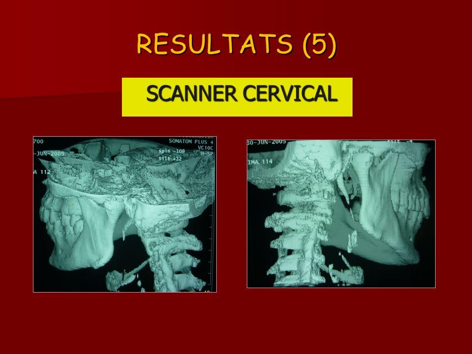 RESULTATS (5) SCANNER CERVICAL SCANNER CERVICAL