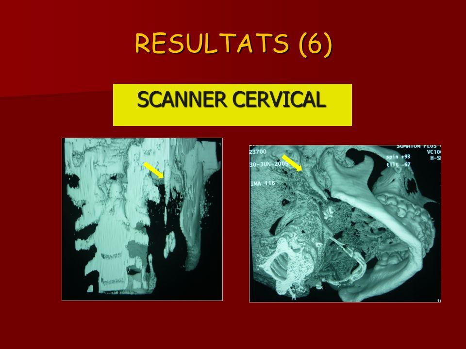RESULTATS (6) SCANNER CERVICAL SCANNER CERVICAL