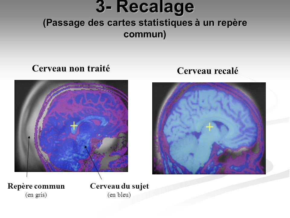 3- Recalage (Passage des cartes statistiques à un repère commun) Cerveau non traité Cerveau recalé Cerveau du sujet (en bleu) Repère commun (en gris)