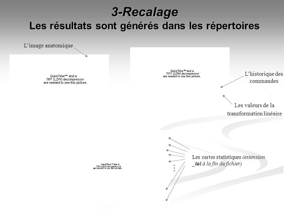 3-Recalage Les résultats sont générés dans les répertoires Limage anatomique Les valeurs de la transformation linéaire Lhistorique des commandes Les c