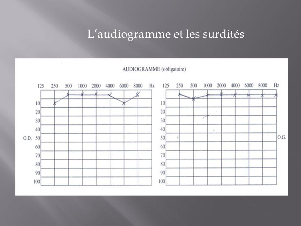 Laudiogramme et les surdités