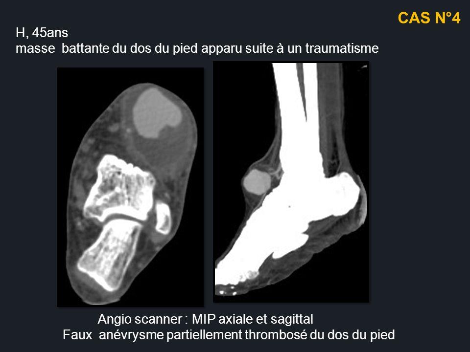 H, 45ans masse battante du dos du pied apparu suite à un traumatisme Angio scanner : MIP axiale et sagittal Faux anévrysme partiellement thrombosé du