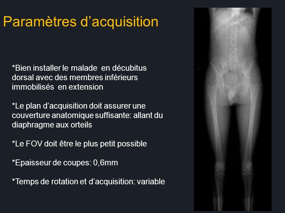 Paramètres dacquisition *Bien installer le malade en décubitus dorsal avec des membres inférieurs immobilisés en extension *Le plan dacquisition doit