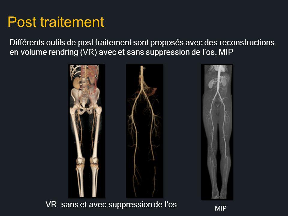 Post traitement Différents outils de post traitement sont proposés avec des reconstructions en volume rendring (VR) avec et sans suppression de los, M