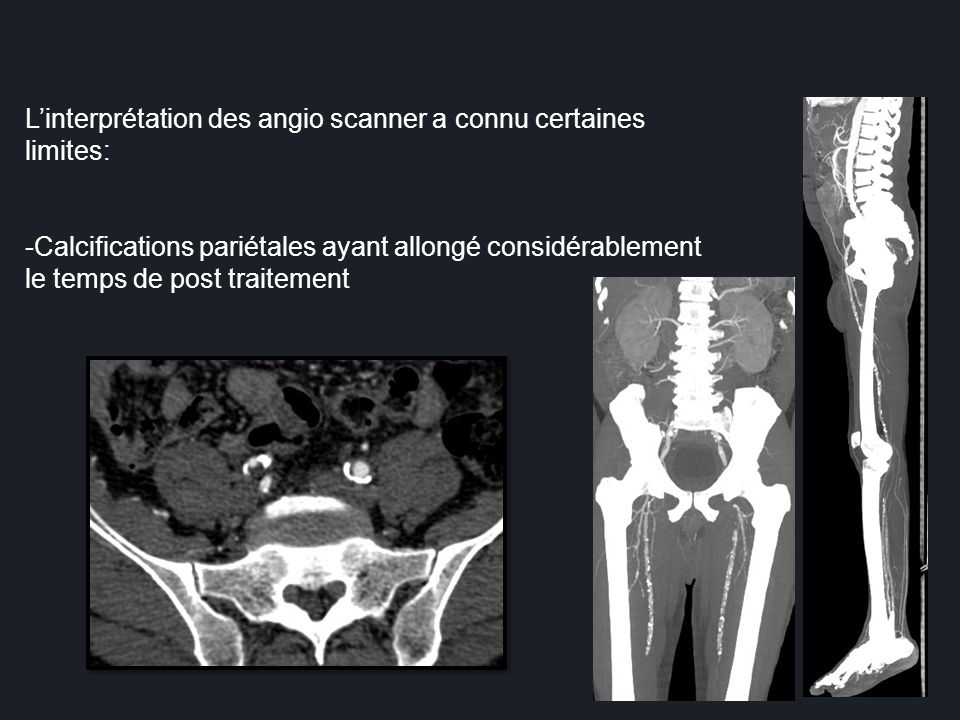Linterprétation des angio scanner a connu certaines limites: -Calcifications pariétales ayant allongé considérablement le temps de post traitement
