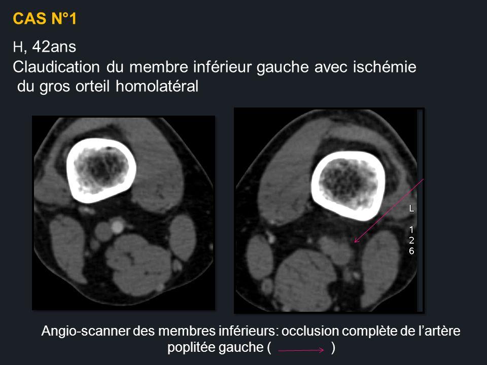 Angio-scanner des membres inférieurs: occlusion complète de lartère poplitée gauche ( ) CAS N°1 H, 42ans Claudication du membre inférieur gauche avec
