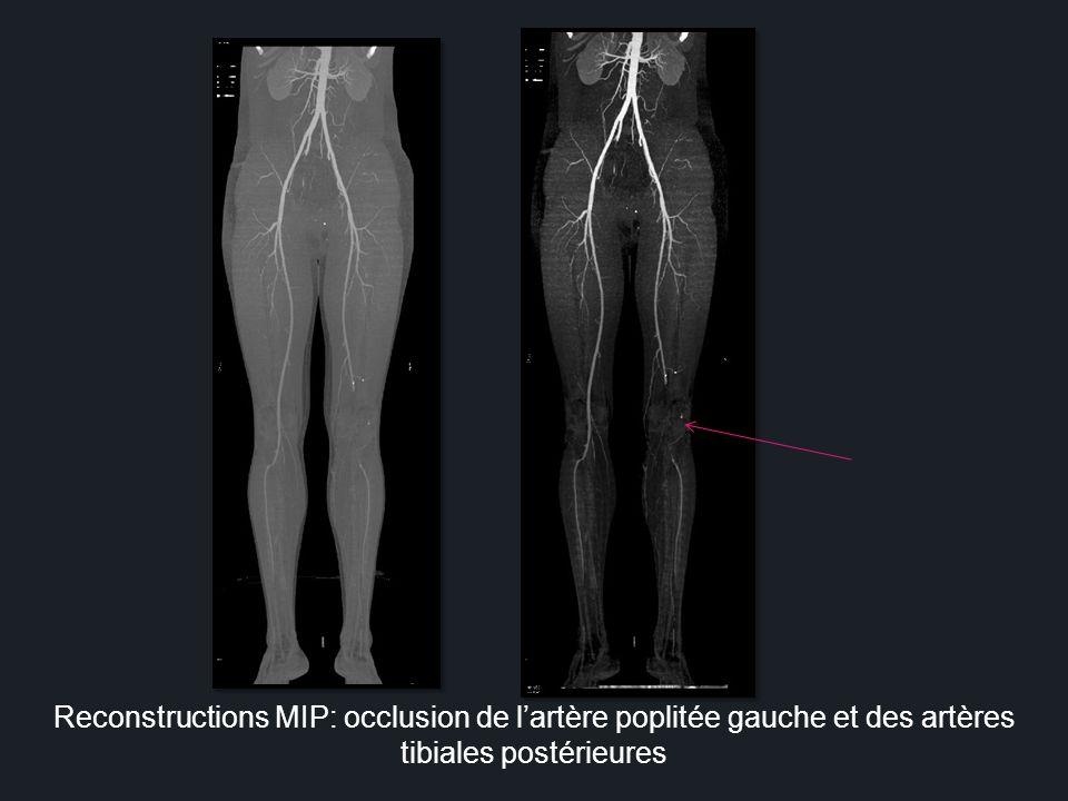 Syndrome de Leriche: thrombose de laorte abdominale étendue aux 2 artères iliaques associée à une riche collatéralité CAS N°2 H, 55ans Claudication des deux Membres inférieurs
