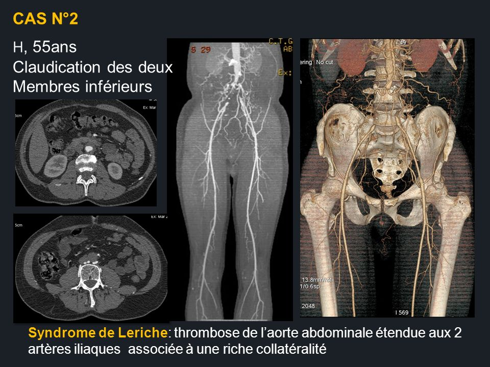 Syndrome de Leriche: thrombose de laorte abdominale étendue aux 2 artères iliaques associée à une riche collatéralité CAS N°2 H, 55ans Claudication de