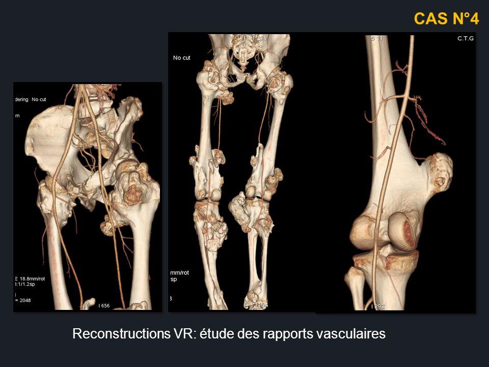 H, 45ans masse battante du dos du pied apparu suite à un traumatisme Angio scanner : MIP axiale et sagittal Faux anévrysme partiellement thrombosé du dos du pied CAS N°4