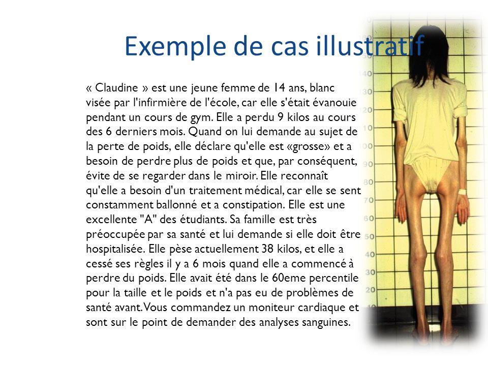 Exemple de cas illustratif « Claudine » est une jeune femme de 14 ans, blanc visée par l'infirmière de l'école, car elle s'était évanouie pendant un c