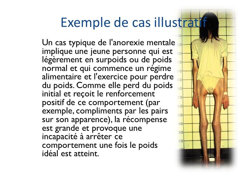 Exemple de cas illustratif Un cas typique de l'anorexie mentale implique une jeune personne qui est légèrement en surpoids ou de poids normal et qui c