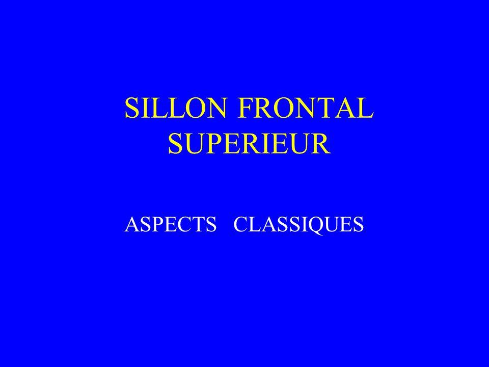 SILLON FRONTAL SUPERIEUR ASPECTS CLASSIQUES