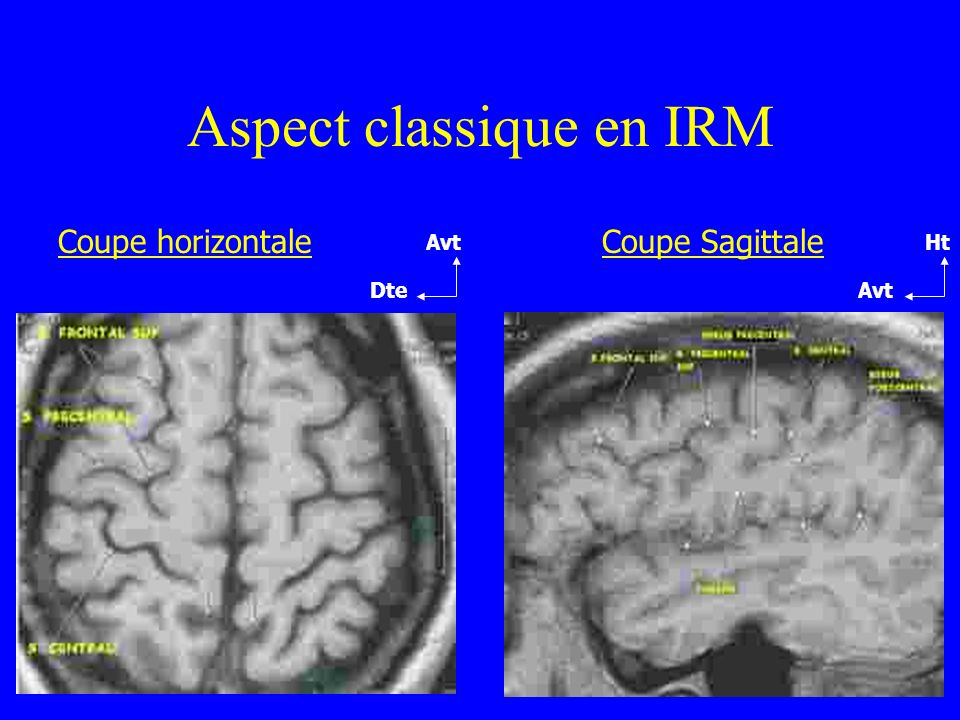 Aspect classique en IRM Coupe horizontaleCoupe Sagittale Avt Dte Ht Avt
