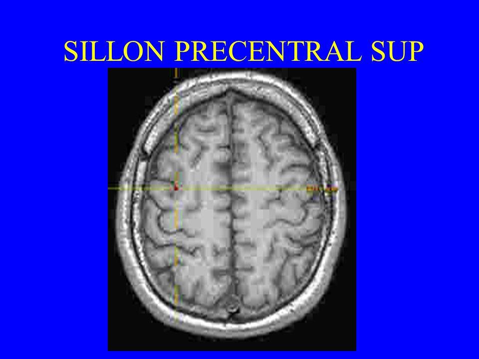 SILLON PRECENTRAL SUP