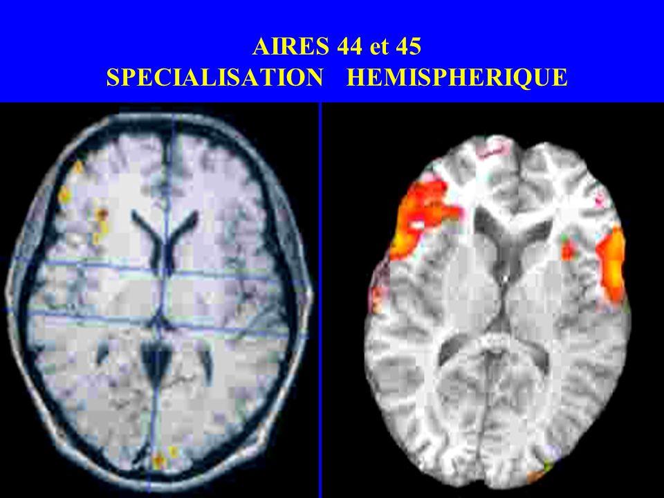 AIRES 44 et 45 SPECIALISATION HEMISPHERIQUE