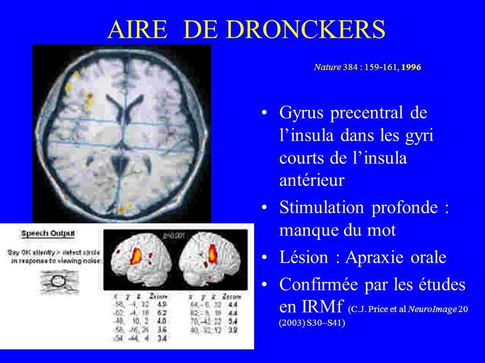 AIRE DE DRONCKERS Nature 384 : 159-161, 1996 Gyrus precentral de linsula dans les gyri courts de linsula antérieur Stimulation profonde : manque du mo