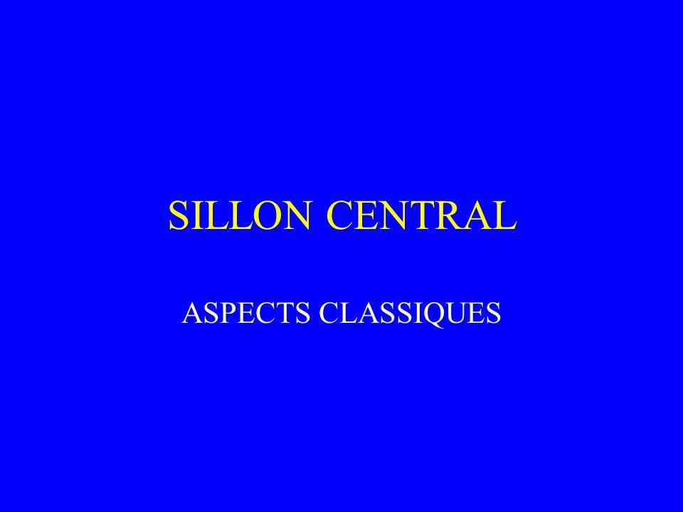 SILLON CENTRAL ASPECTS CLASSIQUES
