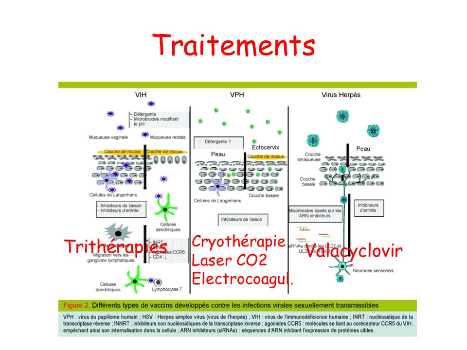 Traitements Trithérapies Cryothérapie Laser CO2 Electrocoagul. Valacyclovir