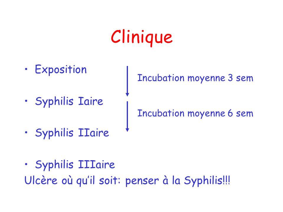 Clinique Exposition Syphilis Iaire Syphilis IIaire Syphilis IIIaire Ulcère où quil soit: penser à la Syphilis!!! Incubation moyenne 3 sem Incubation m